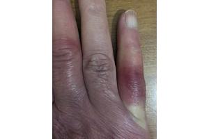 Geloni di mani e piedi fanno molto male. Curiamoli subito.